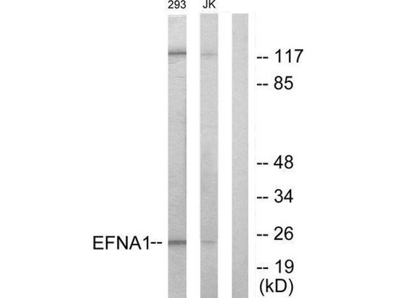 Western Blotting (WB) image for anti-Ephrin A1 antibody (EFNA1) (Internal Region) (ABIN1849236)
