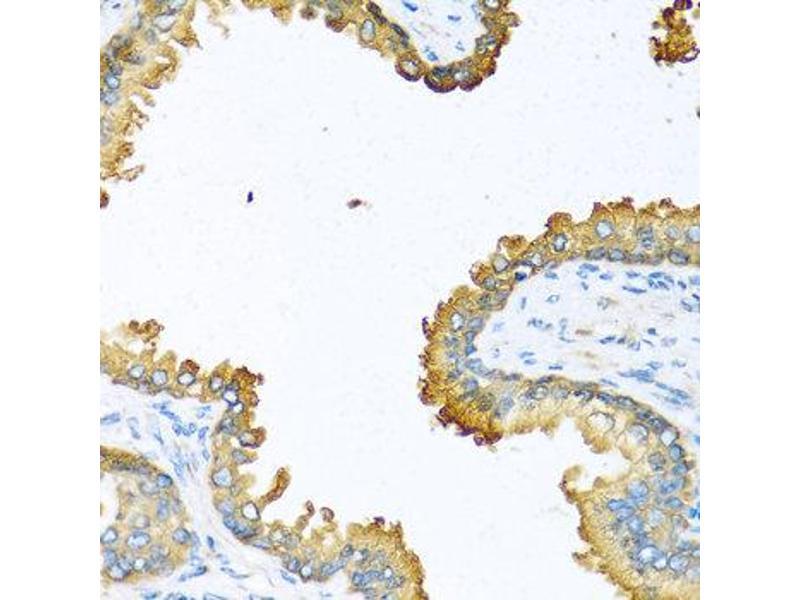 Immunohistochemistry (IHC) image for anti-Vascular Endothelial Growth Factor C (VEGFC) antibody (ABIN1875325)