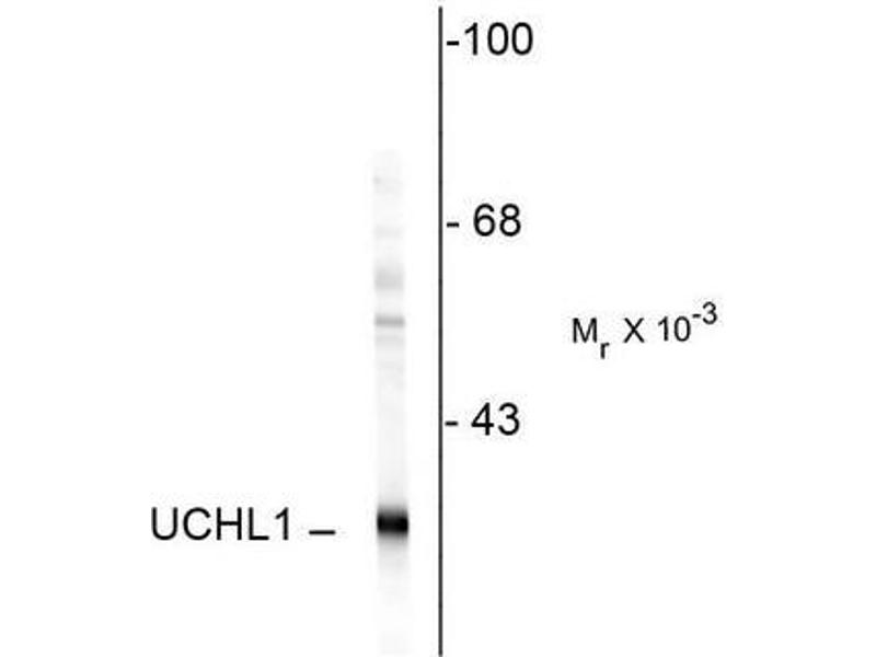 image for anti-UCHL1 antibody (Ubiquitin Carboxyl-terminal Esterase L1 (Ubiquitin Thiolesterase)) (ABIN372739)