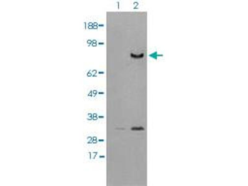 Image no. 2 for anti-Dipeptidyl-Peptidase 4 (DPP4) antibody (ABIN5576789)