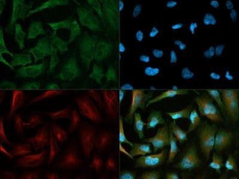 Immunofluorescence (IF) image for anti-3-phosphoinositide Dependent Protein Kinase-1 (PDPK1) (AA 350-436), (C-Term) antibody (ABIN250776)