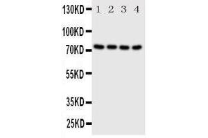 Image no. 2 for anti-P21-Activated Kinase 6 (PAK6) (AA 16-32), (N-Term) antibody (ABIN3044285)
