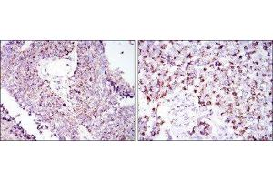 Immunohistochemistry (IHC) image for anti-Heat Shock 60kDa Protein 1 (Chaperonin) (HSPD1) antibody (ABIN4320144)