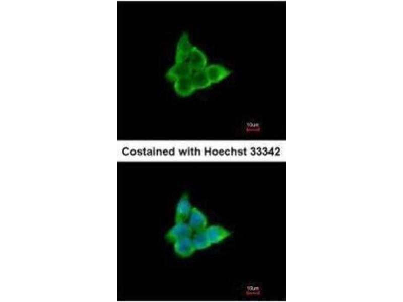 Immunofluorescence (IF) image for anti-Cytokine Inducible SH2-Containing Protein (CISH) (C-Term) antibody (ABIN2854656)