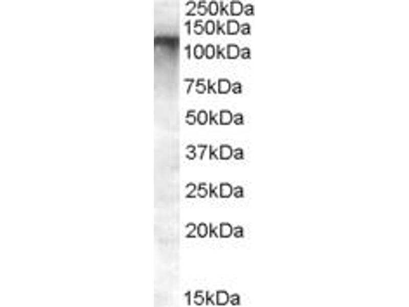Image no. 2 for anti-ATP-Binding Cassette, Sub-Family C (CFTR/MRP), Member 11 (ABCC11) (Internal Region) antibody (ABIN302164)