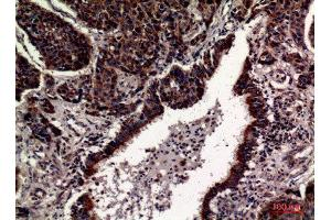 Image no. 4 for anti-CD63 (CD63) (Internal Region) antibody (ABIN3181065)
