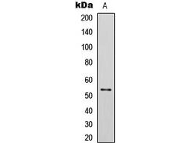 Western Blotting (WB) image for anti-Tumor Protein P53 (TP53) (C-Term), (pSer392) antibody (ABIN2705090)