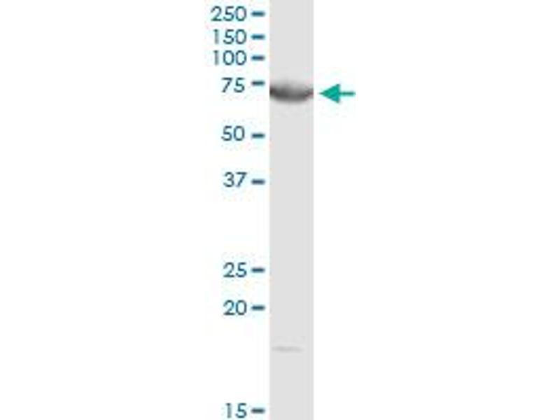 Western Blotting (WB) image for anti-Dystrophia Myotonica-Protein Kinase (DMPK) (AA 1-629), (full length) antibody (ABIN950119)