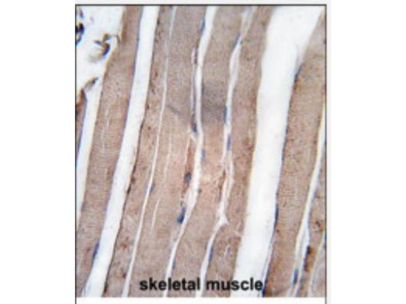 Immunohistochemistry (Paraffin-embedded Sections) (IHC (p)) image for anti-DAP Kinase 1 antibody (Death-Associated Protein Kinase 1) (C-Term) (ABIN4304242)