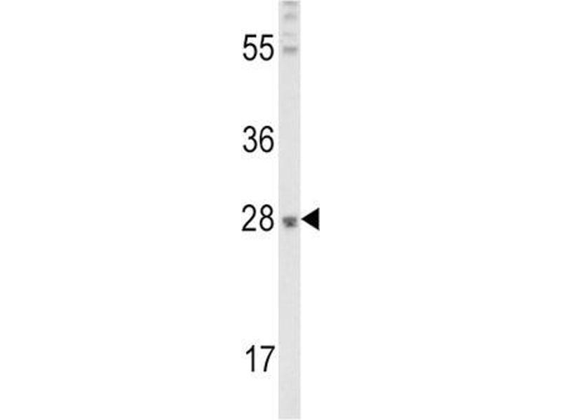 Western Blotting (WB) image for anti-Fibroblast Growth Factor 10 (FGF10) antibody (ABIN3003613)