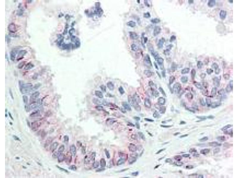 Immunohistochemistry (IHC) image for anti-AKT antibody (V-Akt Murine Thymoma Viral Oncogene Homolog 1) (Ser473) (ABIN400784)