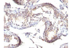 Image no. 2 for anti-Transforming Growth Factor, alpha (TGFA) (C-Term) antibody (ABIN6940715)