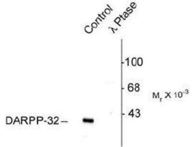 Western Blotting (WB) image for anti-Protein Phosphatase 1, Regulatory (Inhibitor) Subunit 1B (PPP1R1B) (pThr75) antibody (ABIN152574)