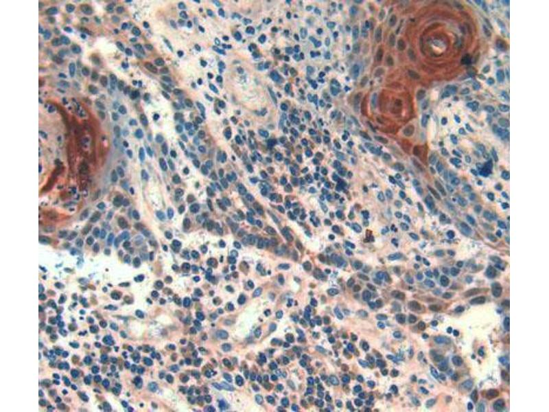 Immunohistochemistry (Paraffin-embedded Sections) (IHC (p)) image for anti-Follistatin (FST) (AA 35-283) antibody (ABIN2929577)