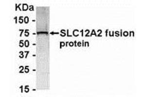 Western Blotting (WB) image for anti-Solute Carrier Family 12 (Potassium-Chloride Transporter) Member 2 (SLC12A2) (AA 800-1000) antibody (ABIN2468175)