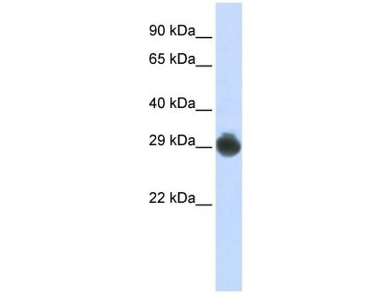 Western Blotting (WB) image for anti-KIT Ligand antibody (KITLG) (Middle Region) (ABIN2781827)