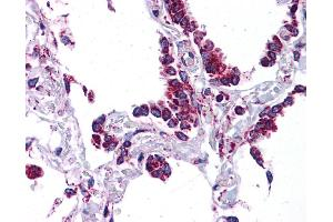 Image no. 2 for anti-Surfactant Protein C (SFTPC) (N-Term) antibody (ABIN2776859)