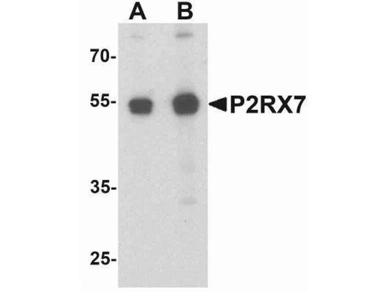 Western Blotting (WB) image for anti-Purinergic Receptor P2X, Ligand-Gated Ion Channel, 7 (P2RX7) (C-Term) antibody (ABIN4342627)