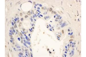 Immunocytochemistry (ICC) image for anti-Signal Transducer and Activator of Transcription 6, Interleukin-4 Induced (STAT6) (AA 600-650) antibody (ABIN153168)