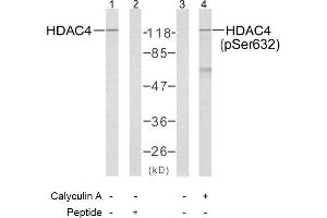 image for anti-HDAC4 antibody (Histone Deacetylase 4) (pSer632) (ABIN196930)
