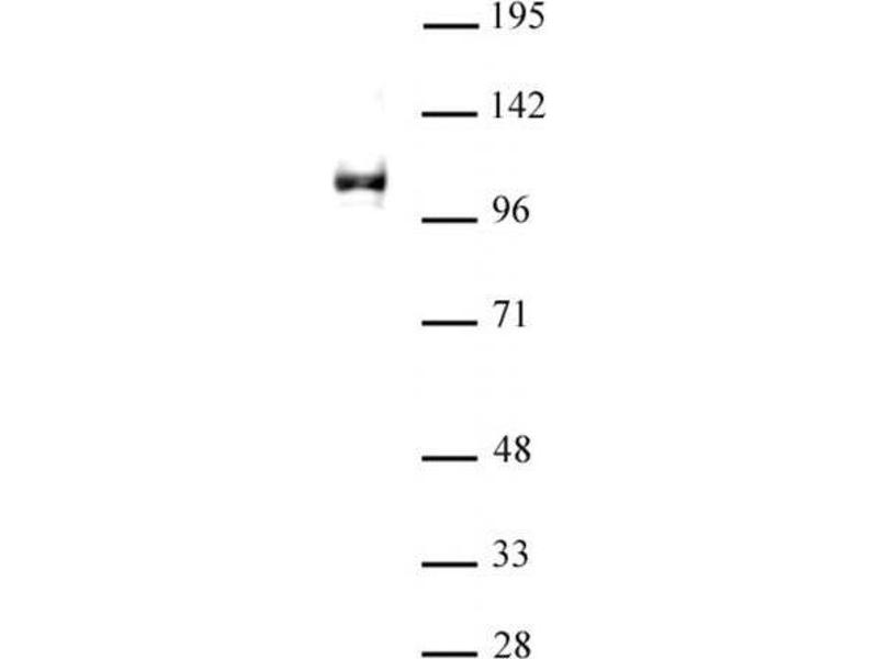Western Blotting (WB) image for anti-Lysine (K)-Specific Demethylase 1A (KDM1A) antibody (ABIN2668255)