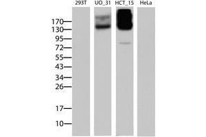 Image no. 5 for anti-ATP-Binding Cassette, Sub-Family B (MDR/TAP), Member 1 (ABCB1) (AA 995-1280) antibody (ABIN1491725)