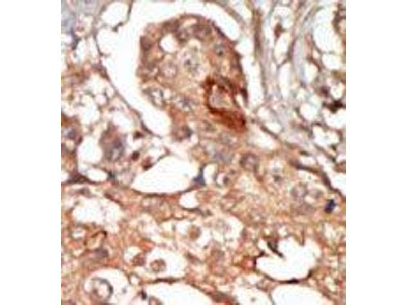 image for anti-Receptor-Interacting serine-threonine Kinase 3 (RIPK3) (C-Term) antibody (ABIN360159)