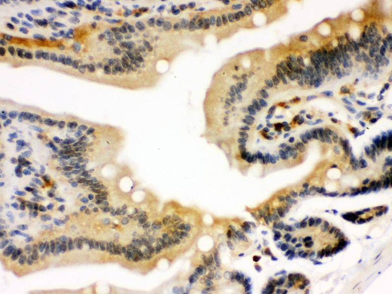 Immunohistochemistry (IHC) image for anti-Signal Transducer and Activator of Transcription 1, 91kDa (STAT1) (AA 114-143), (N-Term) antibody (ABIN3043938)