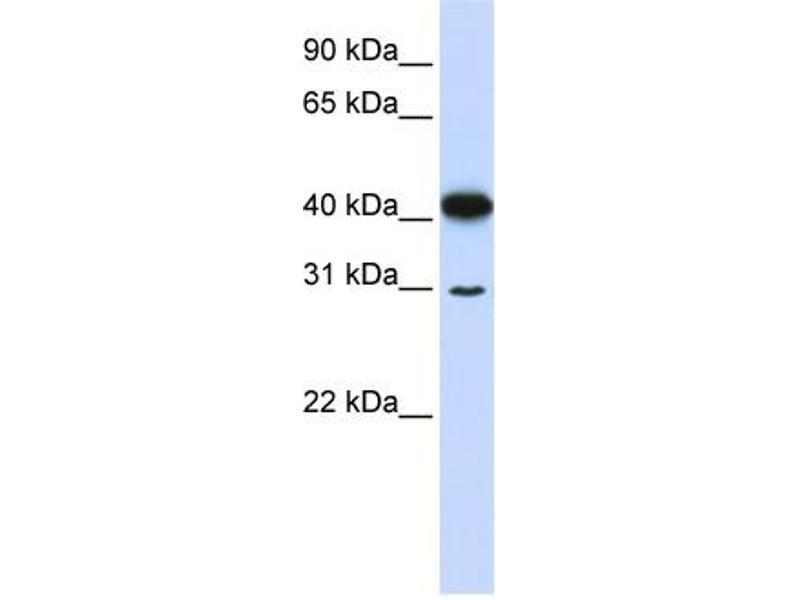 Western Blotting (WB) image for anti-Ovo-Like 2 (Drosophila) (OVOL2) (N-Term) antibody (ABIN2781151)