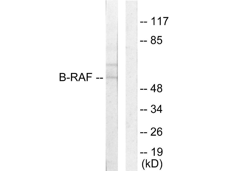 Western Blotting (WB) image for anti-BRAF antibody (V-Raf Murine Sarcoma Viral Oncogene Homolog B1) (ABIN2163048)