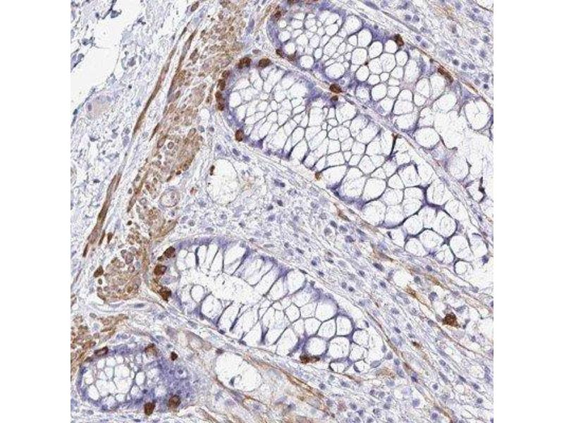 Immunohistochemistry (Paraffin-embedded Sections) (IHC (p)) image for anti-Mediator Complex Subunit 11 (MED11) antibody (ABIN4333400)
