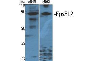 Image no. 2 for anti-EPS8-Like 2 (EPS8L2) (N-Term) antibody (ABIN3184522)