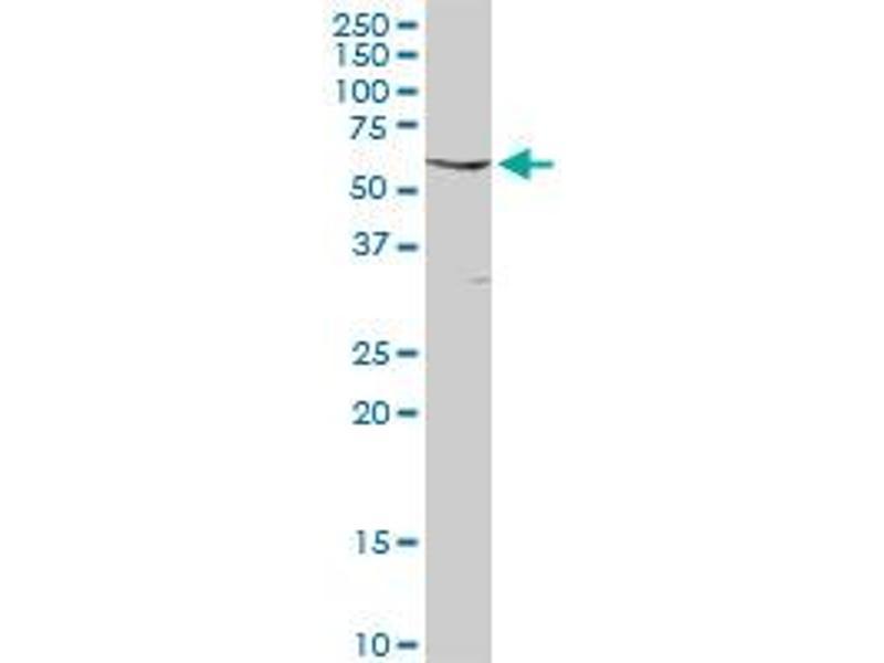 Western Blotting (WB) image for anti-FYN antibody (FYN Oncogene Related To SRC, FGR, YES) (AA 1-537) (ABIN515873)