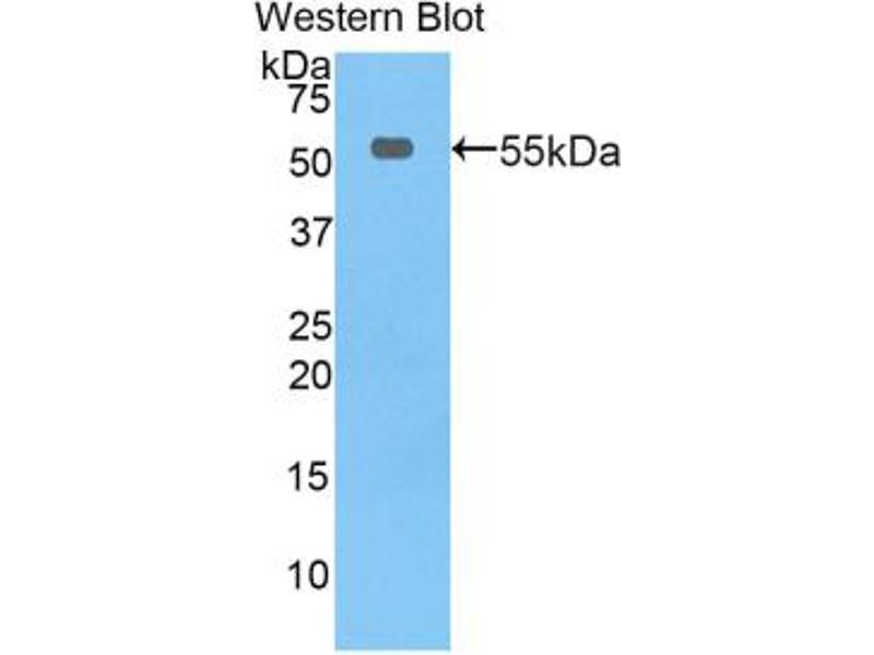 Western Blotting (WB) image for anti-Thymidine Phosphorylase (TYMP) (AA 33-290) antibody (ABIN2902620)