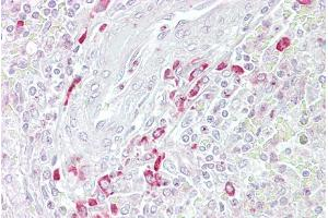 Immunohistochemistry (IHC) image for anti-Frizzled-Related Protein (FRZB) (Middle Region) antibody (ABIN2785778)