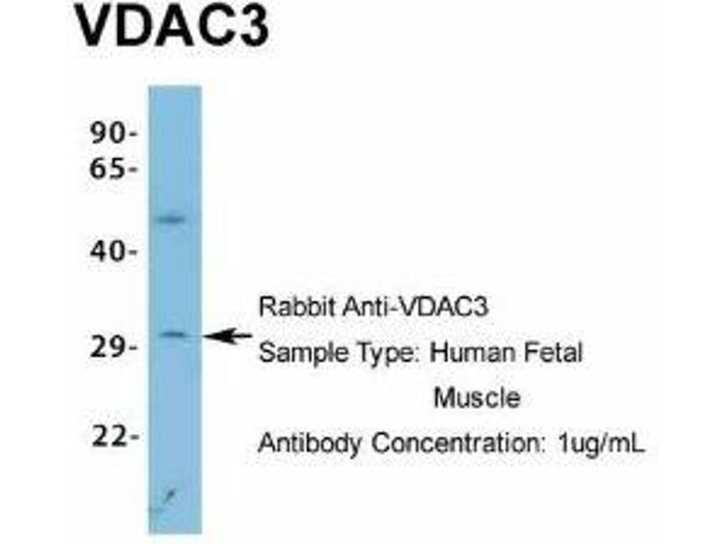 Western Blotting (WB) image for anti-Voltage-Dependent Anion Channel 3 (VDAC3) (N-Term) antibody (ABIN4894330)