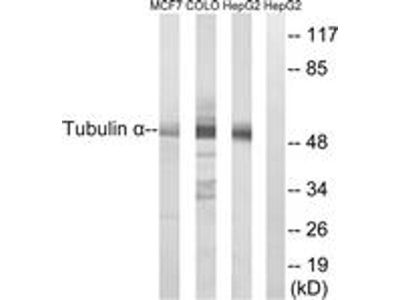 Western Blotting (WB) image for anti-TUBA1A antibody (Tubulin, alpha 1a) (ABIN1533449)