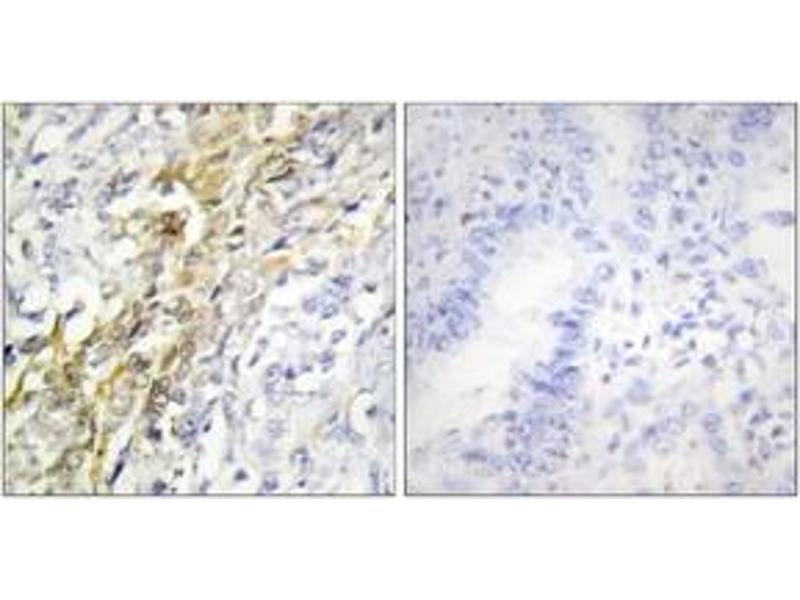 Immunohistochemistry (IHC) image for anti-Casein Kinase 1, alpha 1 (CSNK1A1) (AA 126-175) antibody (ABIN1533743)