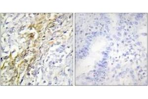 Image no. 2 for anti-Casein Kinase 1, alpha 1 (CSNK1A1) (AA 126-175) antibody (ABIN1533743)