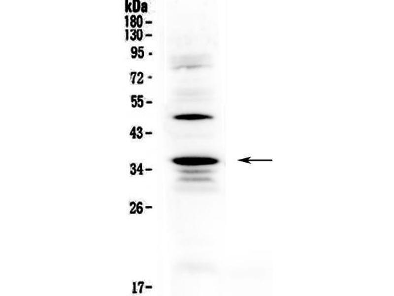 Western Blotting (WB) image for anti-CD40 Ligand (CD40LG) (AA 107-260) antibody (ABIN5692813)