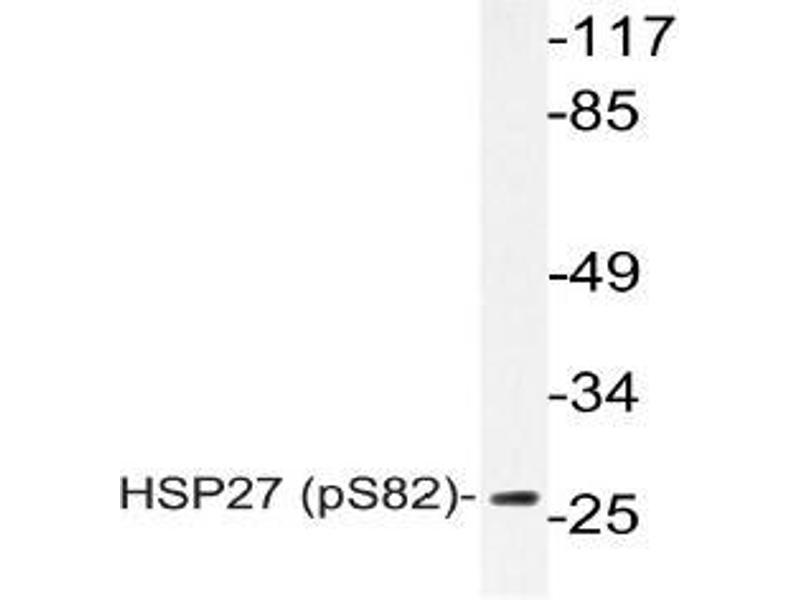 Western Blotting (WB) image for anti-HSPB1 antibody (Heat Shock 27kDa Protein 1) (pSer82) (ABIN498746)