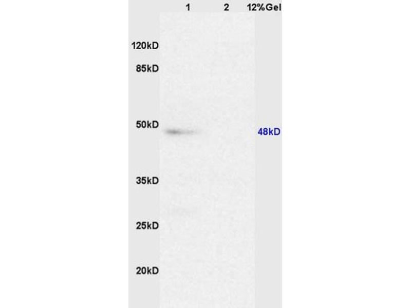 SDS-PAGE (SDS) image for anti-Caspase 8 Antikörper (Caspase 8, Apoptosis-Related Cysteine Peptidase) (AA 430-482) (ABIN724205)