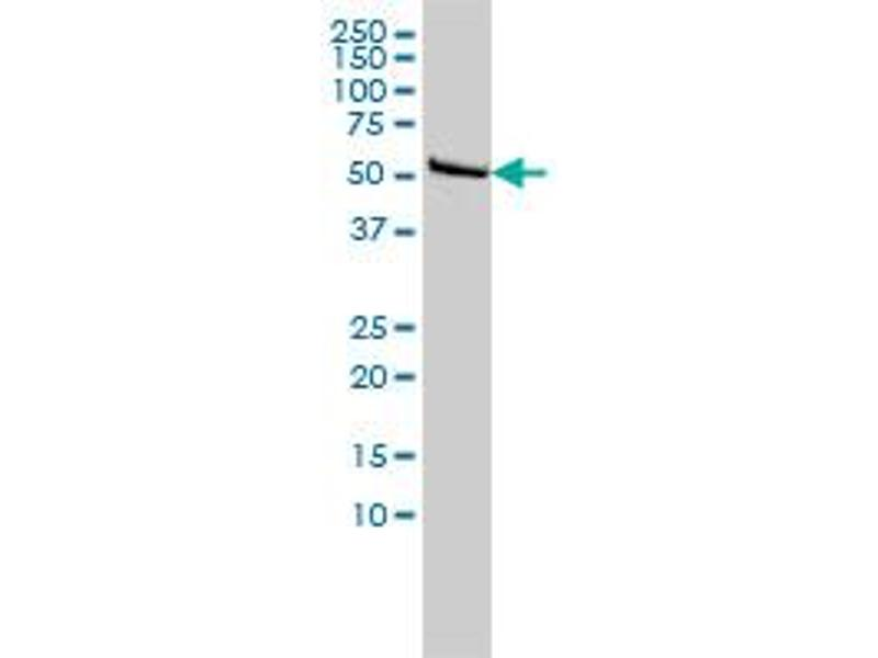 Western Blotting (WB) image for anti-DLD antibody (Dihydrolipoamide Dehydrogenase) (AA 1-509) (ABIN560607)