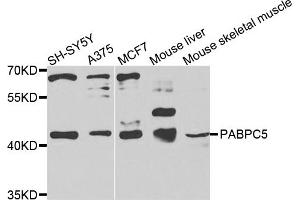 Image no. 1 for anti-Poly(A) Binding Protein, Cytoplasmic 5 (PABPC5) antibody (ABIN6572120)