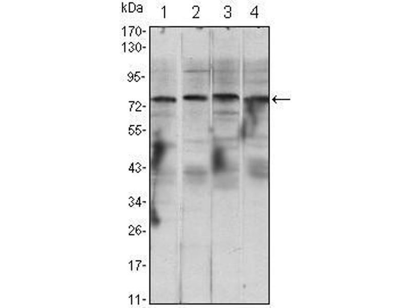 Western Blotting (WB) image for anti-conserved Helix-Loop-Helix Ubiquitous Kinase (CHUK) antibody (ABIN931520)
