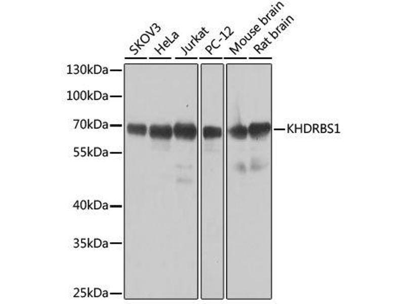 Western Blotting (WB) image for anti-KH Domain Containing, RNA Binding, Signal Transduction Associated 1 (KHDRBS1) antibody (ABIN6142829)