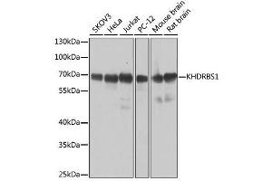 Western Blotting (WB) image for anti-KH Domain Containing, RNA Binding, Signal Transduction Associated 1 (KHDRBS1) antibody (ABIN6142829)