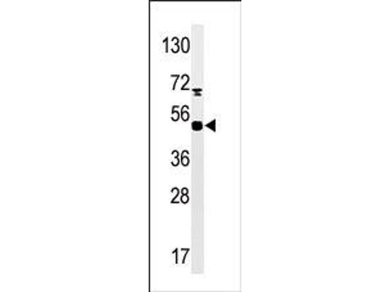 image for anti-Mitogen-Activated Protein Kinase-Activated Protein Kinase 5 (MAPKAPK5) (pSer93) antibody (ABIN358154)