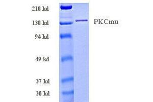 SDS-PAGE (SDS) image for Protein Kinase D1 (PRKD1) (Active) protein (ABIN411952)