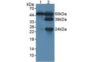 Image no. 1 for anti-Lymphocyte-Specific Protein 1 (LSP1) (AA 127-331) antibody (ABIN5013893)